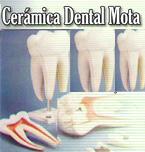 Logo de Cerámica Dental Mota