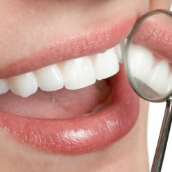 Servicios Odontológicos Express img-10