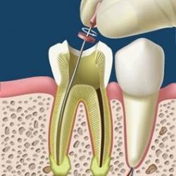 Servicios Odontológicos Express img-15