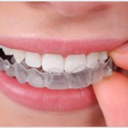 Servicios Odontológicos Express img-13