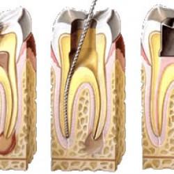 Servicios Odontológicos Express img-8