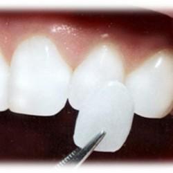 Servicios Odontológicos Express img-1
