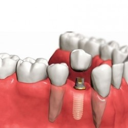 Servicios Odontológicos Express img-14