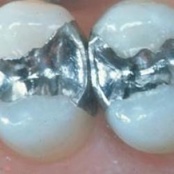 Conceptos Dentales img-1