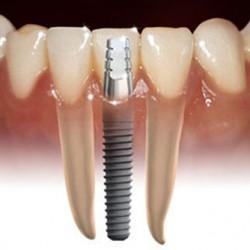 Servicios Odontológicos Express img-5