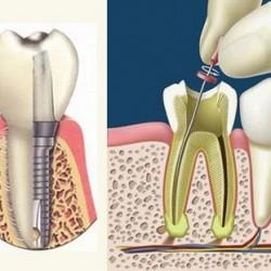 Servicios Odontológicos Express img-7