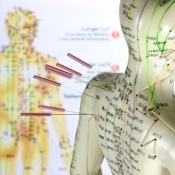 Dr. Luis B. Vega Acupuntura China y Homeopatía, Medicinas Alternativas e Iridología img-3