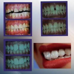 Nueva Imagen Dental img-0