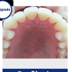 Nueva Imagen Dental img-1